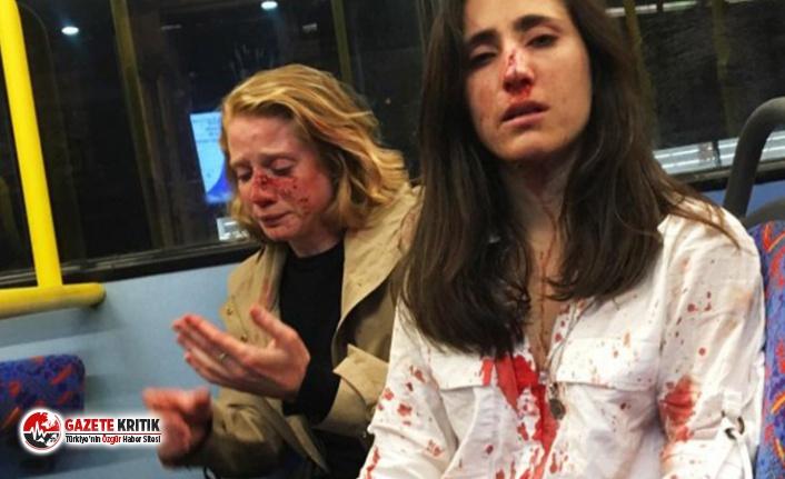 Lezbiyen çift, 'öpüşmelerini' talep eden erkekler tarafından saldırıya uğradı!
