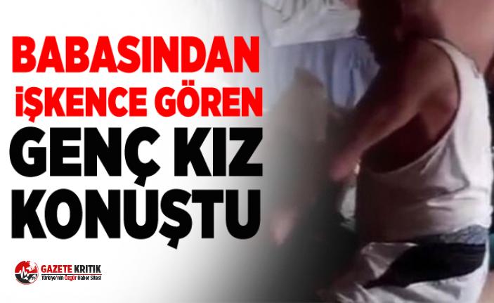 İstanbul'da babası tarafından işkence gören genç kadın konuştu
