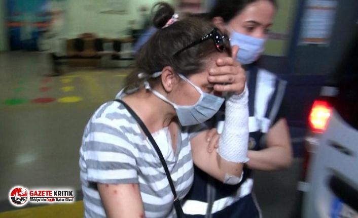 Erkek arkadaşının yüzüne kezzap atan kadının koronavirüs testi pozitif çıktı: 4 polis karantinaya alındı