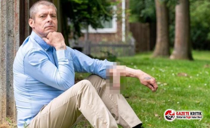 Tamirci Malcolm MacDonald, kolunda penisiyle 4 yıldır yaşıyor