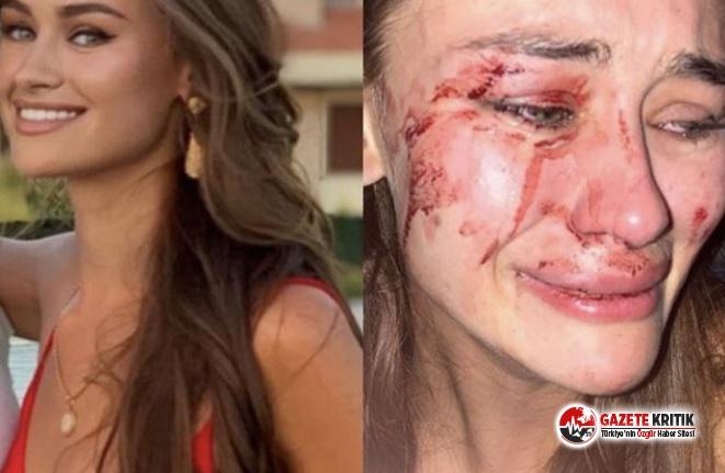 Dünyaca tanınmış model Türkiye'de saldırıya uğradı