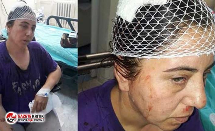 Arazi anlaşmazlığı nedeniyle ailesiyle beraber  şiddet gören Dağcı: AKP'ye üye oldukları için kendilerini dokunulmaz sanıyorlar
