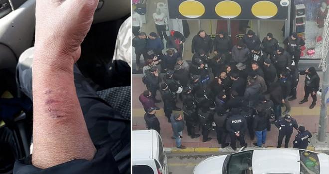 Kadın polisin kolunu ısıran HDP'li Aydeniz'e soruşturma