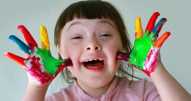 Down sendromu nedir? Down sendromunun nedenleri, belirtileri ve tedavisi…