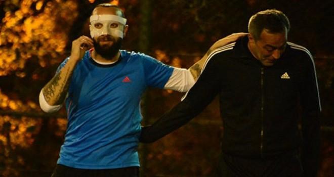 Arda Turan'ın burnunu kırdığı Berkay, özel maskeyle sahada: Yüzümle para kazanıyorum, top atmayın