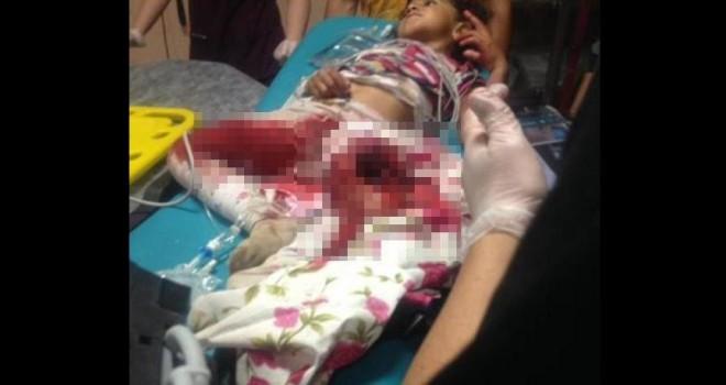 Patos makinesine düşen kız ağır yaralandı