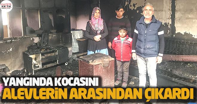 Yangında kocasını alevlerin arasından çıkardı