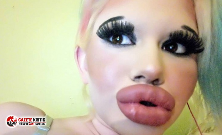 Dünyanın en büyük dudaklarına sahip olmak için 15 operasyon geçirdi
