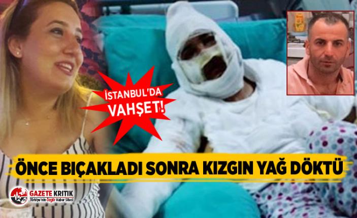 Önce bıçakladı sonra kızgın yağ döktü... İstanbul'da vahşet!