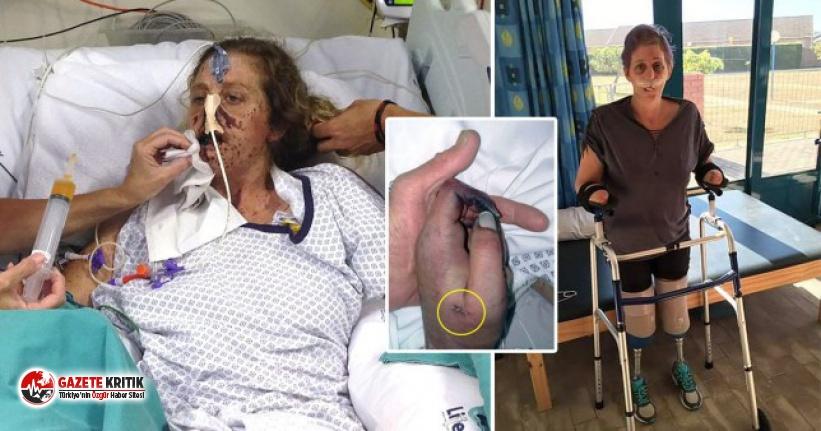 Bir ısırık hayatını mahvetti! 66 ameliyat geçirmek zorunda kaldı