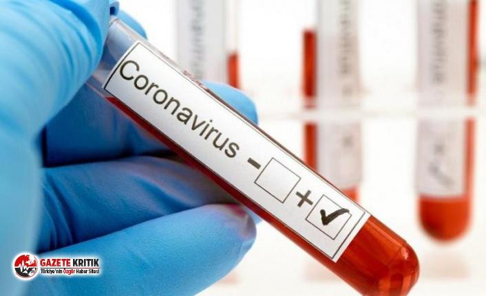 Yoğun bakımda uyanan koronavirüs hastasından doktorları ağlatan not