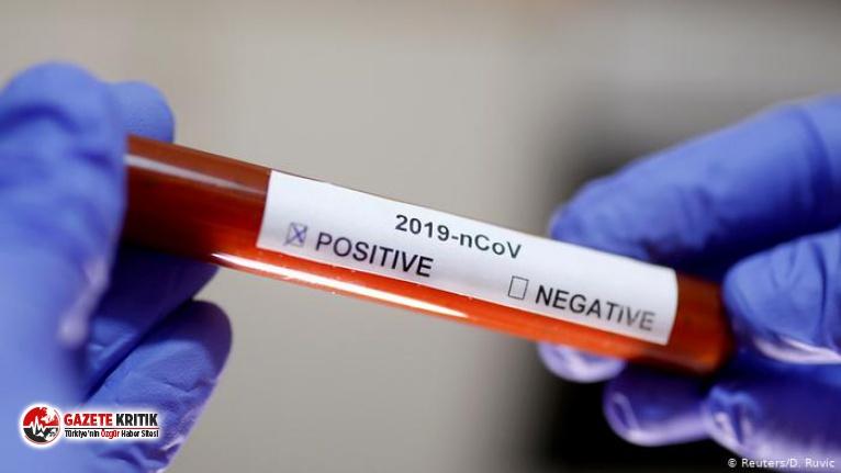 ABD'den, koronavirüsü dakikalar içinde tespit eden antikor testine izin