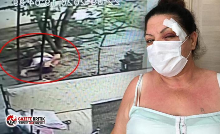 Sitede oturan kadın, aracının yerine park eden sürücü tarafından dövüldü