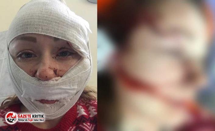 Anna Butim'e falçatayla saldıran şahıs tutuklandı