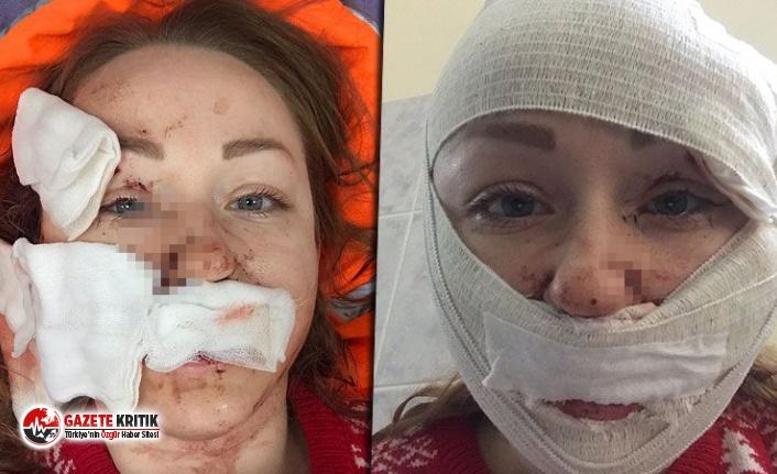 Boşanmak isteyen eşinin yüzünü falçatayla parçaladı