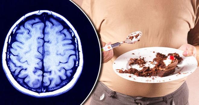 Bilim insanları:Aşırı kilo, beyinde küçülmeye...