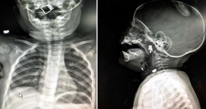 Boğazına mandal yayı kaçan bebek kurtarıldı